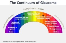 Continium of Glaucoma